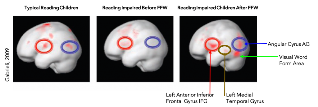 Brain scans before and after Fast ForWord training